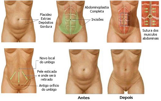 abdominoplastia fotos