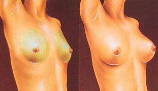 protese mamaria