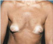 protese mamaria seios