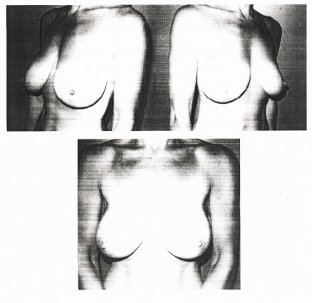 fotos protese silicone