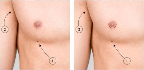 Comparação de implantes de aumento em um peito