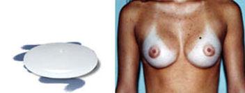 protese de silicone