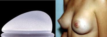 fotos protese de silicone